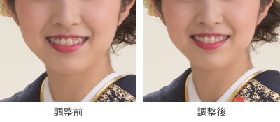 歯の矯正除去イメージ